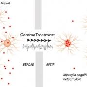 Noninvasive Visual Stimulation May Illuminate a Path for Alzheimer's Disease Treatment