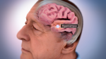 Data Detectives Shift Suspicions in Alzheimer's from Usual Suspect to Inside Villain