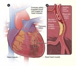 Fight Against Top Killer, Clogged Arteries, Garners Acclaimed NIH Award